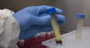More than 48.5 lakh coronavirus global cases with 3.18 lakh deaths